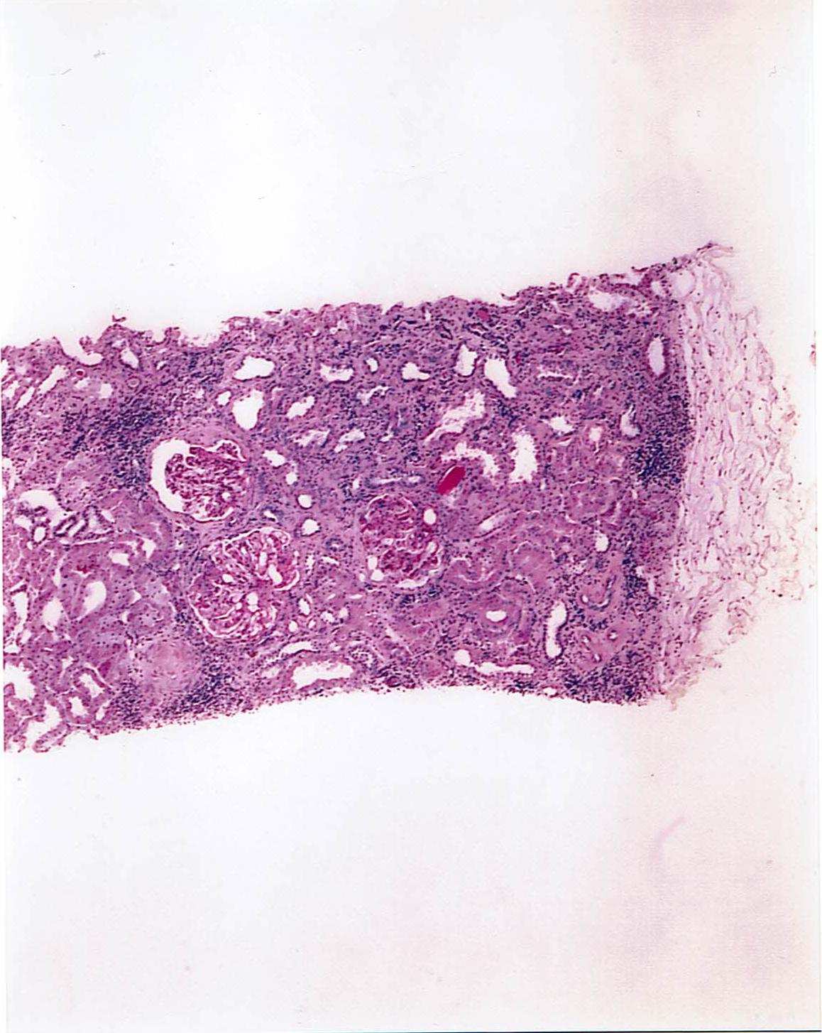 腎生検の結果
