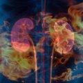 IgA腎症-再燃したきっかけ